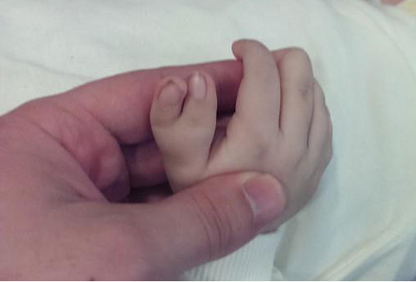 6 палец на руке у новорожденного