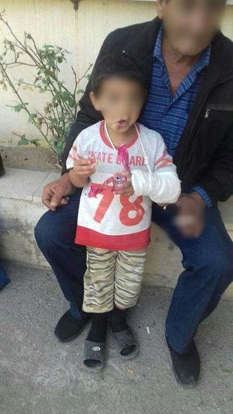 Bakıda görünməmiş vəhşilik: Ögey ana azyaşlı uşaqlara işgəncə verdi - FOTO _11