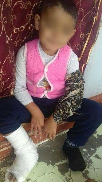 Bakıda görünməmiş vəhşilik: Ögey ana azyaşlı uşaqlara işgəncə verdi - FOTO _12
