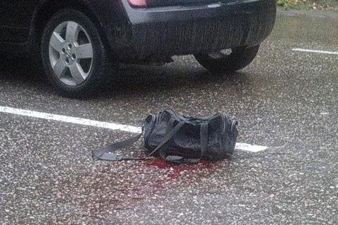 Bayılda 59 yaşlı qadını maşın vurdu
